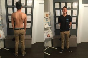 La Verne Scoliosis Chiropractic Treatment